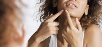 Dermatologia problemów pojęcie obrazy royalty free
