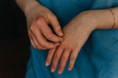 Dermatologia problem, egzema zdjęcie stock