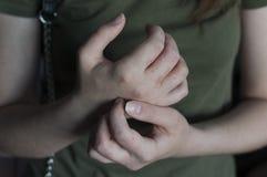 Dermatologia problem z rękami alergia zdjęcia stock