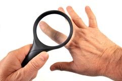 Dermatologiczny egzamin palec z powiększać - szkło obrazy stock