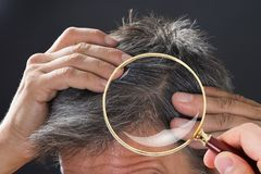 Dermatologist Checking Patient`s Hair. Close-up Of Dermatologist Checking Patient`s Hair Through Magnifying Glass Royalty Free Stock Photo