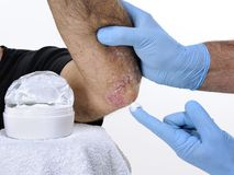 The dermatologist cure an adult man suffering from elbow psoriasis. The dermatologist with his hands protected by gloves treats with the cream the inflammation Royalty Free Stock Photo