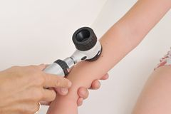 Dermatologist examines child patient birthmark. With dermatoscope Royalty Free Stock Images