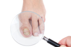 Dermatologist examines the nail on the presence of the eczema. Doctor dermatologist examines the nail on the presence of the fungus, eczema. Close-up Stock Image