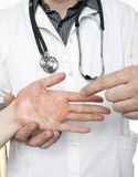 Dermatologist examining hand with severe eczema. Dermatologist holding a woman's hand and diagnosing a severe case of eczema or dermatitis Royalty Free Stock Photo