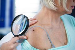 Dermatologist examining mole of female patient with magnifying glass. In clinic Royalty Free Stock Photography