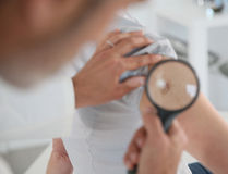 Dermatologist examining mole. Dermatologist looking at woman's mole with magnifier Royalty Free Stock Photography
