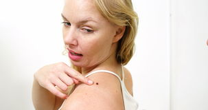 Dermatologist examining mole with magnifying glass stock footage