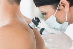 Dermatologist examining mole on patient. Closeup of dermatologist examining mole on back of male patient in clinic Royalty Free Stock Photo