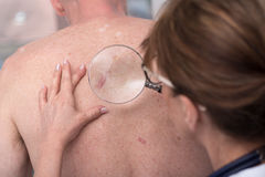 Dermatologist examining the skin of a patient. Dermatologist examining the skin on the back of a patient Stock Image