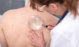Dermatologist examining the skin of a patient. Dermatologist examining the skin on the back of a patient Royalty Free Stock Image