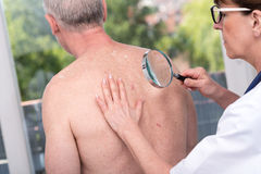 Dermatologist examining the skin of a patient. Dermatologist examining the skin on the back of a patient Stock Photography