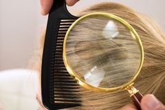 Dermatologist looking blonde hair through magnifying glass Royalty Free Stock Image