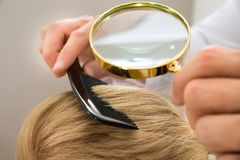 Dermatologist looking blonde hair through magnifying glass Royalty Free Stock Photos