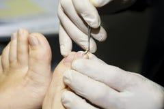 Dermatologist makes inspection, nail fungus. Dermatologist  makes viewing , shot close-up, nails fungus Royalty Free Stock Photo
