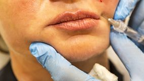 Dermatologist performs contour plastic to correction of nasolabial folds Royalty Free Stock Photo