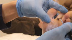 Dermatologist surgeon performs wart removal with electrocoagulator - step 4/10 stock video