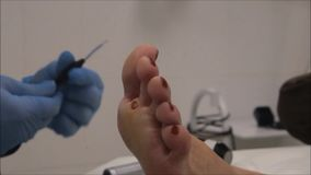 Dermatologist surgeon performs wart removal with electrocoagulator - step 10/10 stock video