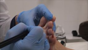 Dermatologist surgeon performs wart removal with electrocoagulator - step 9/10 stock footage