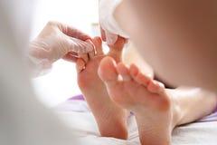 Dermatologist. Toe and nail fungus stock photography