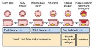 Desarrollo de una placa arterial Fotos de archivo libres de regalías