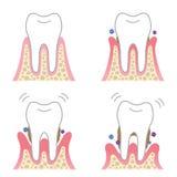 Desease periodontal Imagenes de archivo