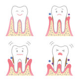 Desease periodontal ilustración del vector