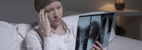 Despairing woman with brain cancer Royalty Free Stock Photography