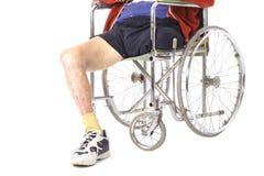 Después de la amputación de la pierna de la cirugía Imágenes de archivo libres de regalías