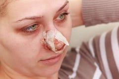 Después de la operación de la nariz Foto de archivo libre de regalías
