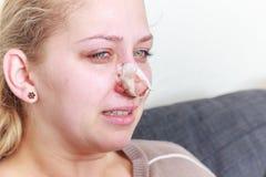 Después de la operación de la nariz fotografía de archivo libre de regalías