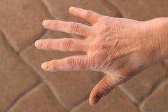 Dessa är händer av en gammal kvinna med fingret smärtar royaltyfria bilder