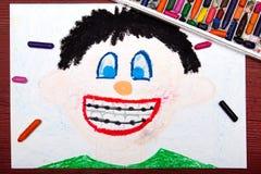 Dessin : garçon avec des accolades Photo libre de droits