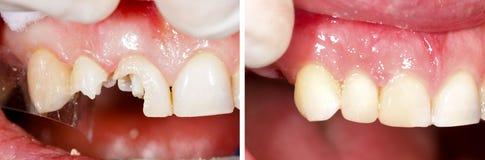 Destructed zębów wypełniać Zdjęcia Royalty Free