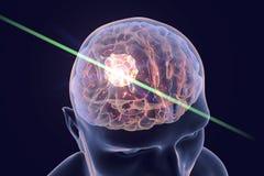 Destruction of brain tumor. By laser, 3D illustration. Conceptual image for brain cancer treatment vector illustration