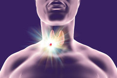Destruction of thyroid tumor. 3D illustration. Conceptual image for thyroid cancer treatment Royalty Free Stock Photo