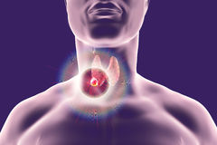 Destruction of thyroid tumor Royalty Free Stock Image