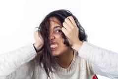 Det hysteriska kvinnauttryckt med henne räcker på huvudet på en whit Royaltyfri Fotografi