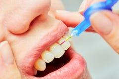 Det korrekta bruket av en tandborste för perfekt muntligt Arkivfoto