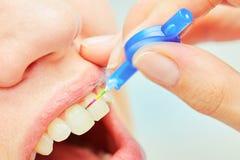 Det korrekta bruket av en tandborste för perfekt muntligt Royaltyfria Bilder