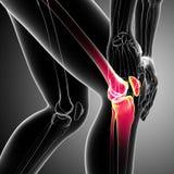 Det mänskliga knäet smärtar Fotografering för Bildbyråer