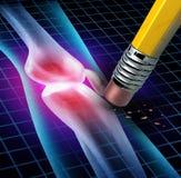 Det mänskliga knäet smärtar lättnad Arkivfoto