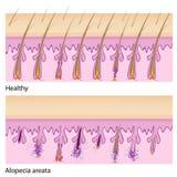 Det normalahår och Alopeciaareata royaltyfri illustrationer