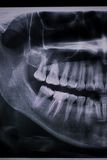 Detail of dental X Ray with a root canal. Second molar down royalty free stock image