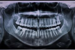 Detail of dental X Ray with a root canal. Second molar down stock photos