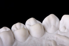 Detail dental wax model Royalty Free Stock Images