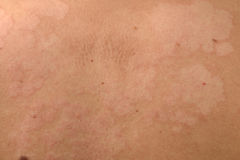 Detail der Haut stockfotografie
