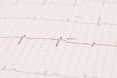 Detail of an electrocardiogram Royalty Free Stock Image