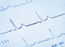 Detail of an electrocardiogram Royalty Free Stock Photo