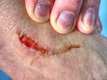 Detail of a fresh scab on leg after sport accident. Wet bloody royalty free stock photo